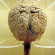 Brainx1000